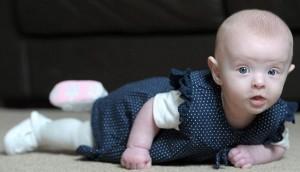 Olivia Norton e1336041769291 300x172 - El Fantasma Blanco, Un Bebé nace sin Sangre