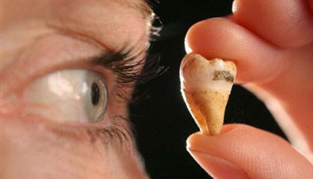 Muela John Lennon Dentista canadiense quiere clonar a John Lennon mediante el ADN de una de sus muelas