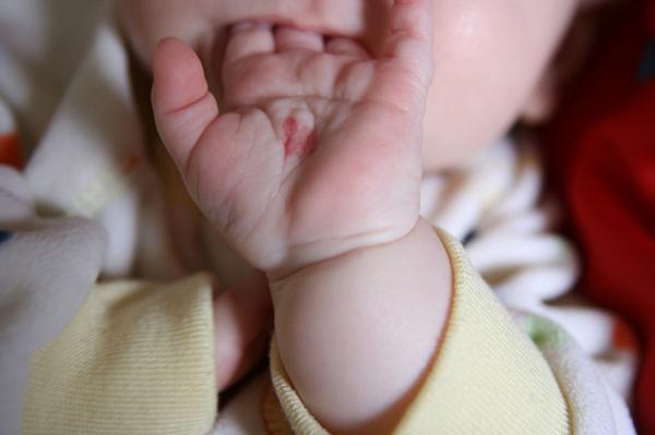 Vidas pasadas ¿Las marcas de nacimiento son pruebas de muertes violentas en vidas pasadas?