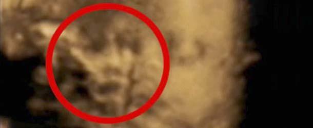 rostro fantasmal ecografia - Aparece un rostro fantasmal en una ecografía 4D