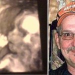 Una mujer descubre el rostro fantasmal de su padre fallecido en la ecografía de su hija