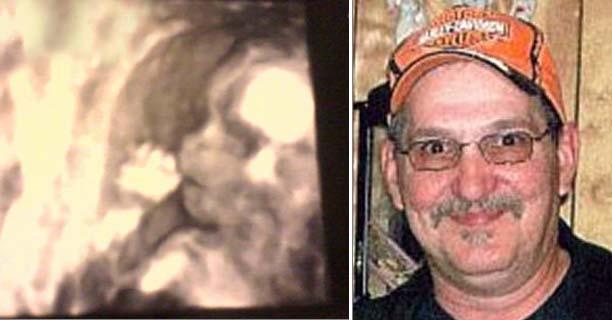 rostro fantasmal ecografia - Una mujer descubre el rostro fantasmal de su padre fallecido en la ecografía de su hija