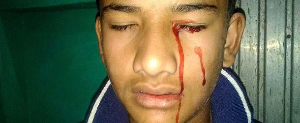 Médicos desconcertados con un joven con estigmas, llora sangre diariamente