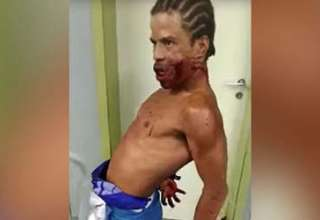 hombre poseido brasil 320x220 - Aterrador vídeo muestra un hombre poseído con un disparo en la cara en un hospital de Brasil