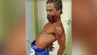 hombre poseido brasil 384x220 - Aterrador vídeo muestra un hombre poseído con un disparo en la cara en un hospital de Brasil