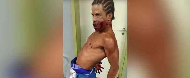 hombre poseido brasil - Aterrador vídeo muestra un hombre poseído con un disparo en la cara en un hospital de Brasil