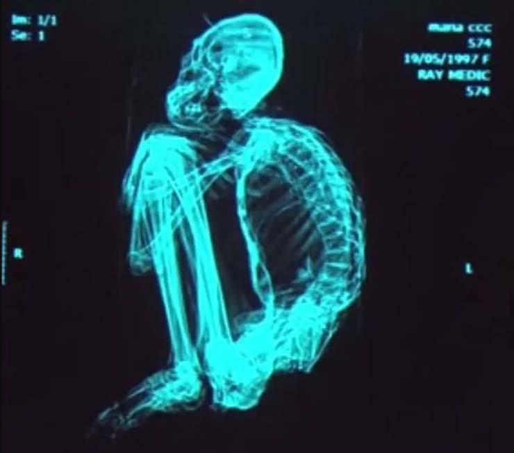 momia extraterrestre nueva especie humana - Investigador británico asegura que la momia extraterrestre de tres dedos de Perú es una nueva especie humana