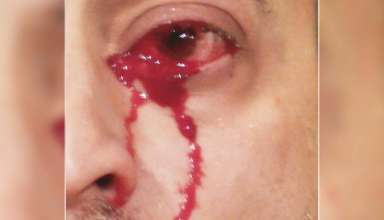 lagrimas sangre 384x220 - Médicos italianos no pueden explicar el extraño caso de un hombre que llora lágrimas de sangre