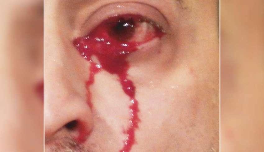 lagrimas sangre 850x491 - Médicos italianos no pueden explicar el extraño caso de un hombre que llora lágrimas de sangre
