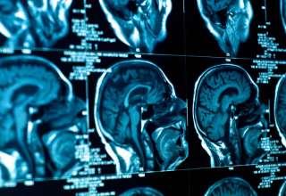 tumor cerebral 320x220 - Médicos no pueden explicar cómo el tumor cerebral de un sacerdote desparece justo antes de ser operado, ¿milagro médico?