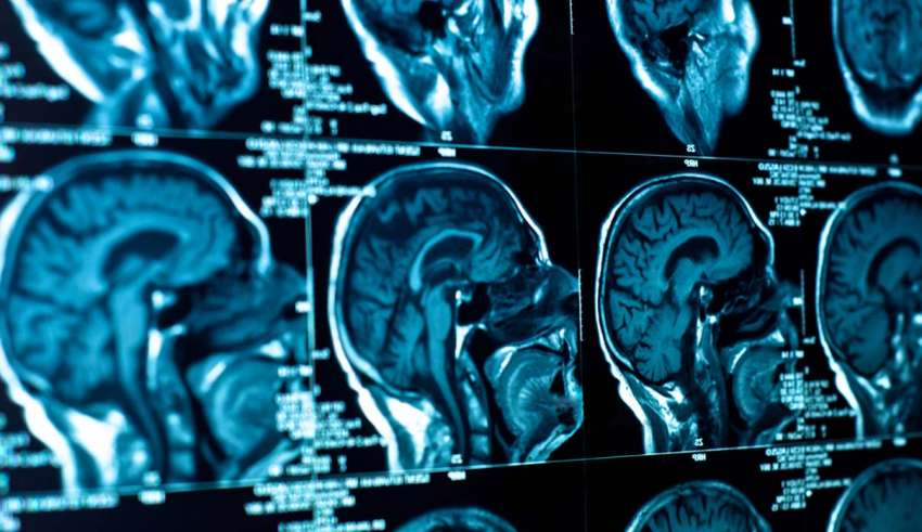 tumor cerebral 850x491 - Médicos no pueden explicar cómo el tumor cerebral de un sacerdote desparece justo antes de ser operado, ¿milagro médico?