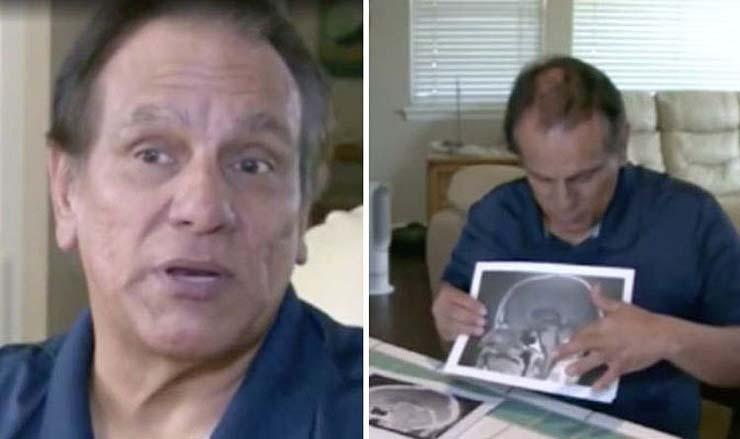 tumor cerebral milagro - Médicos no pueden explicar cómo el tumor cerebral de un sacerdote desparece justo antes de ser operado, ¿milagro médico?