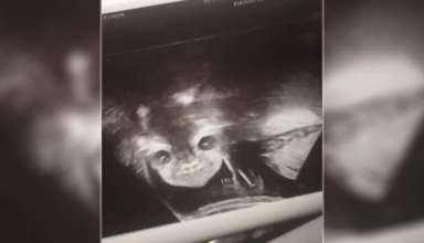 rostro demoniaco 384x220 - Una mujer embarazada queda conmocionada al ver un rostro demoníaco durante su ecografía