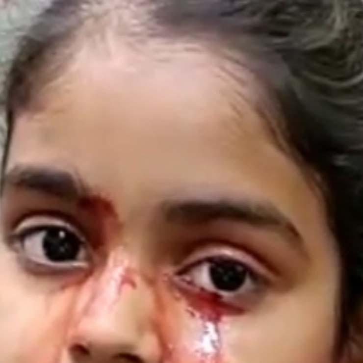nina 11 anos llora sangre - Una niña de 11 años llora sangre y los médicos no encuentran explicación