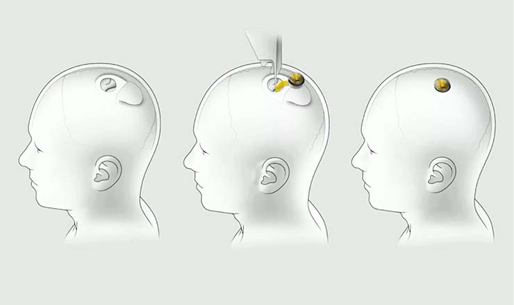 elon musk chip cerebro - Este es el plan de Elon Musk para controlar a la población: presenta un chip que se implanta en el cerebro